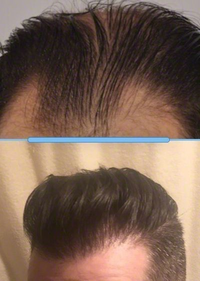 patient-ooo-before-after-13-months-comparison