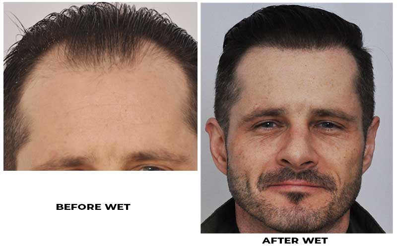 patient-ooo-before-after-front-wet