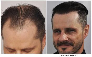 patient-ooo-before-after-left-wet