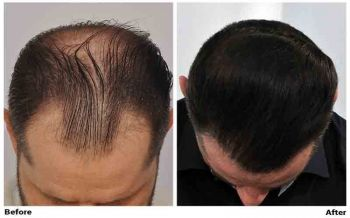 patient-ooo-before-after-top
