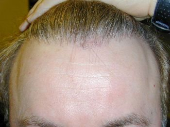 after results front hairline