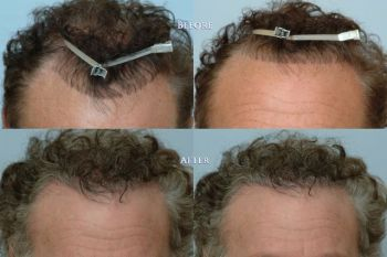 repair_of_hair_line_100