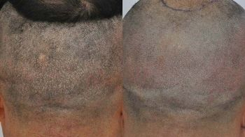 patient-llg-before-after-smp-back-front3