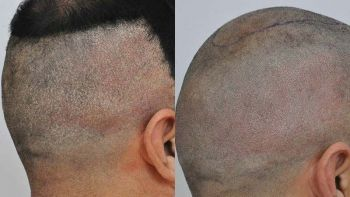 patient-llg-before-after-smp-right