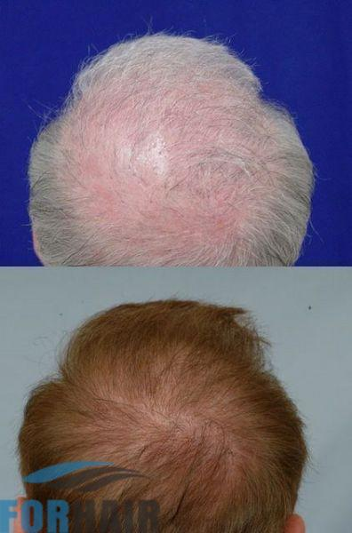 before-and-after-crown