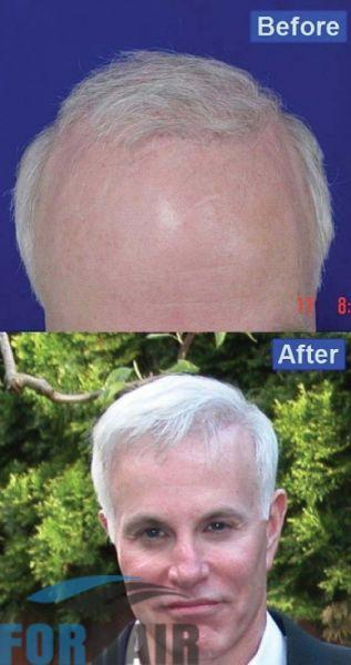 patient-mbr-before-after-front