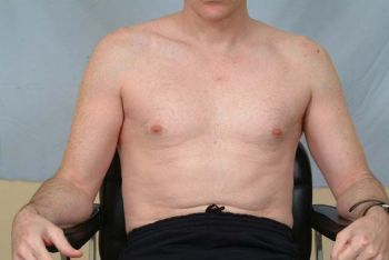 chest-area-after-healling