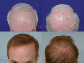 patient-mbr-before-after-front-crown