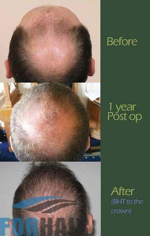 before-and-after-body-hair-to-the-crown