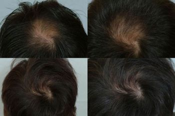 before and after results on the crown