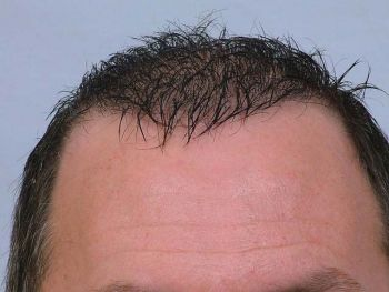 after-with-wet-hair-hairline