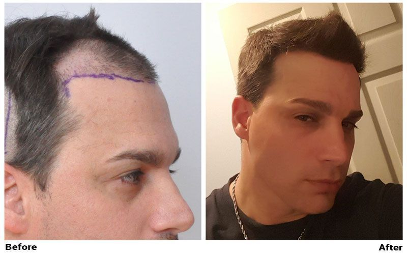 patient-ssm-before-shaved-after-right-side2