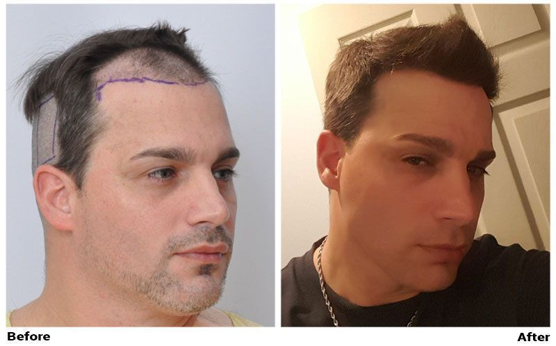 patient-ssm-before-shaved-after-right-side3