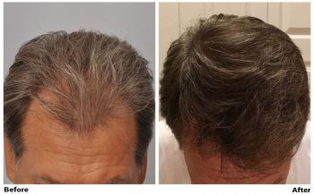 patient-gcc-before-after-top-dry-copy