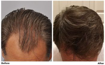 patient-gcc-before-after-top