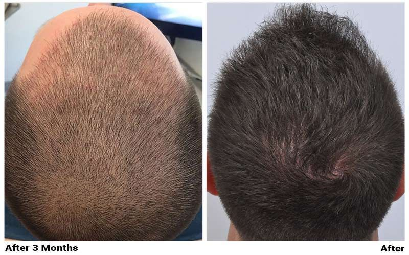 patient-nnb-before-3-months-after-comparison
