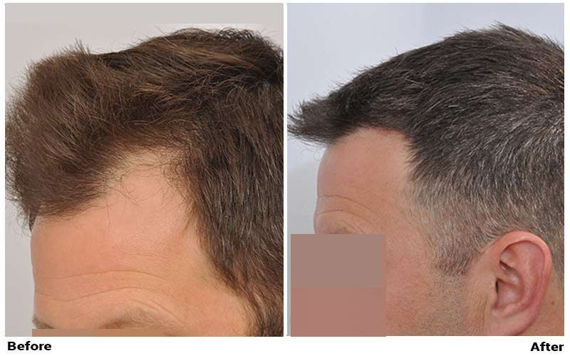 patient-nnb-before-after-left-dry