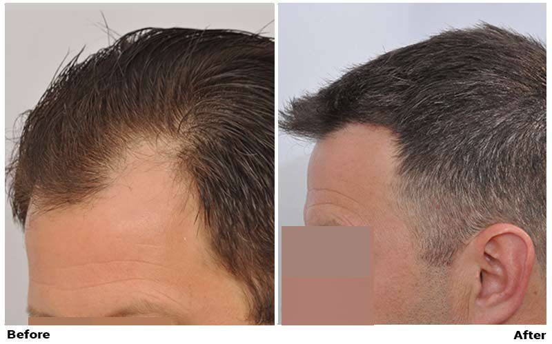 patient-nnb-before-after-left-wet