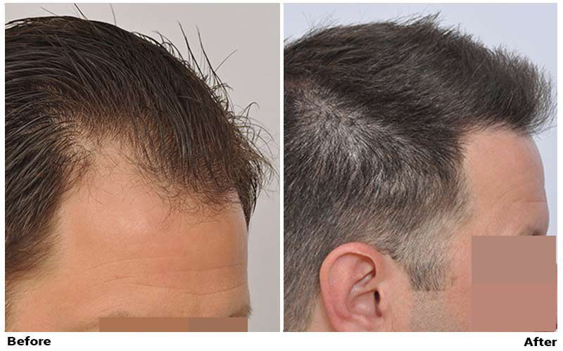 patient-nnb-before-after-right-dry3