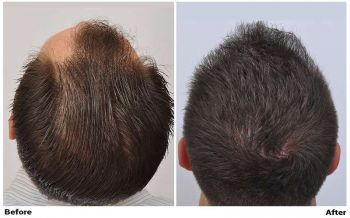 patient-nnb-before-after-back
