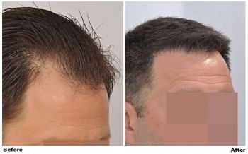 patient-nnb-before-after-right-dry