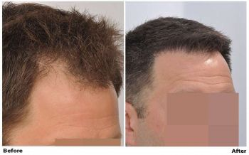 patient-nnb-before-after-right-dry2