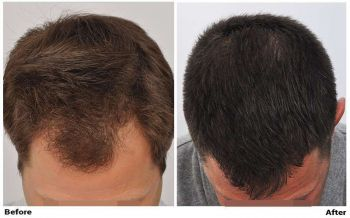 patient-nnb-before-after-top-dry