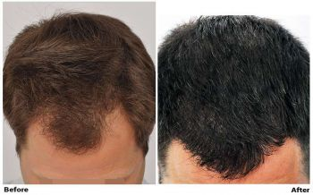 patient-nnb-before-dry-after-top-wet