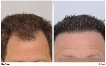 patient-nnb-before-dry-after-wet-front