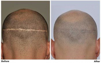 before-after-fue-scar-back