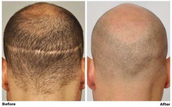 before-after-fue-scar-back2