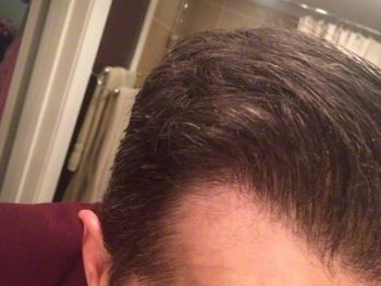 patient-ooo-after-8-months-hairline2