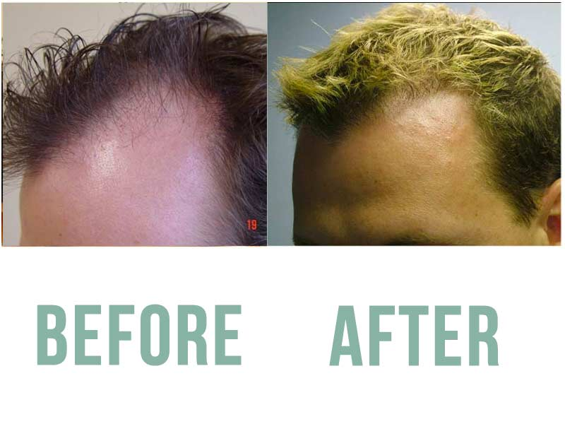 before-after-left