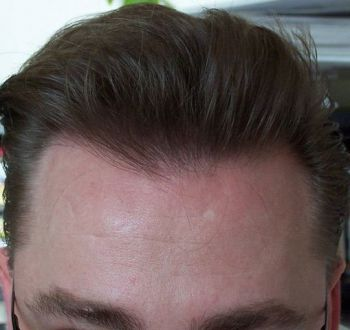 after- front face hair pulled back dry