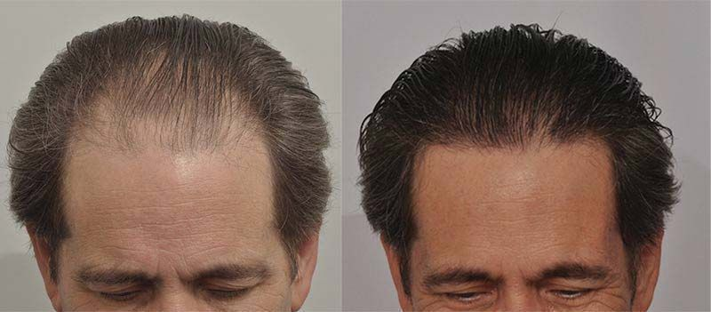 patient-ppp-before-after-front-hair-wet