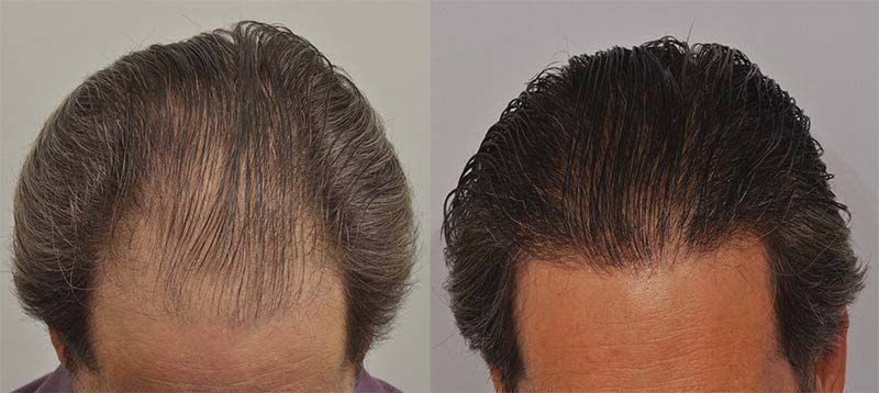 patient-ppp-before-after-top-wet-hair