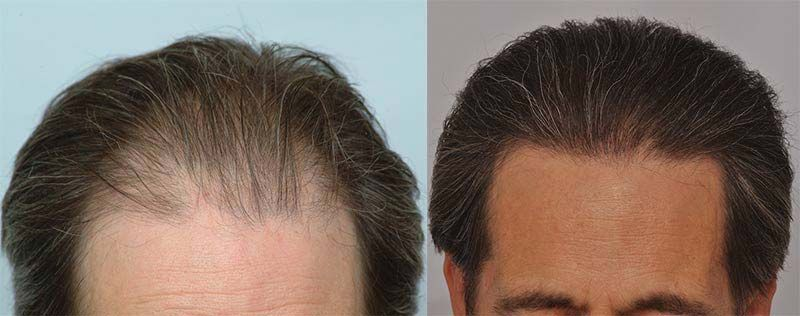 patient-ppp-before-front-hairline