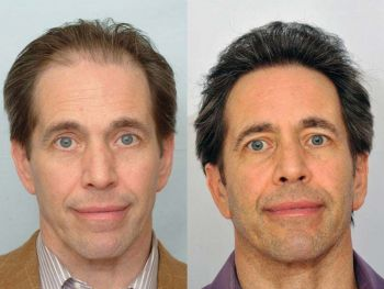 patient-ppp-before-after-full-face