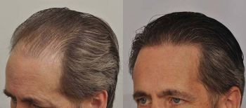 patient-ppp-before-after-left-wet-hair