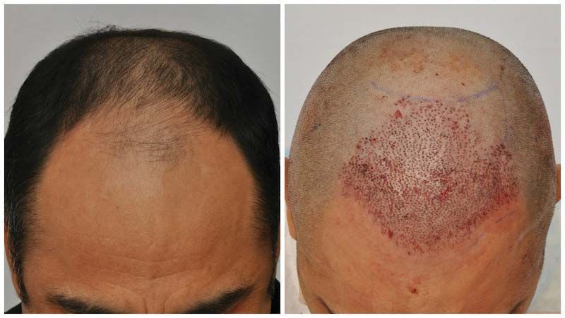 patient-vvc-before-after-placement