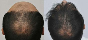 patient-vvc-before-after-back2