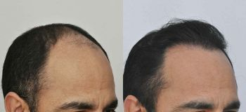 patient-vvc-before-after-right