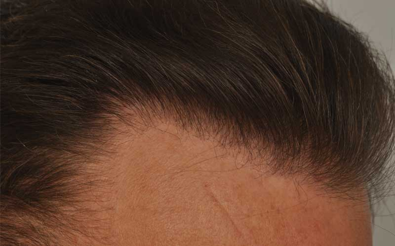 smp-after-photo-hairline