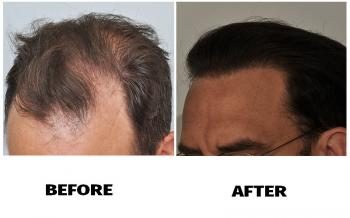 patient-smp-before-after-left-side-dry-hair
