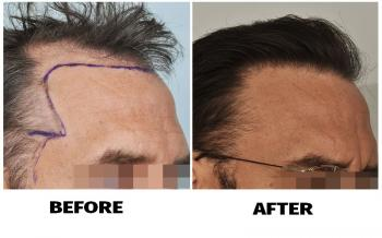 patient-smp-before-after-right-side2