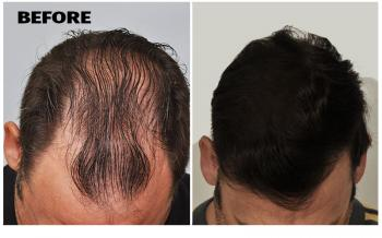 patient-smp-before-after-top-dry