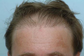 patient-sfd-before-hairline