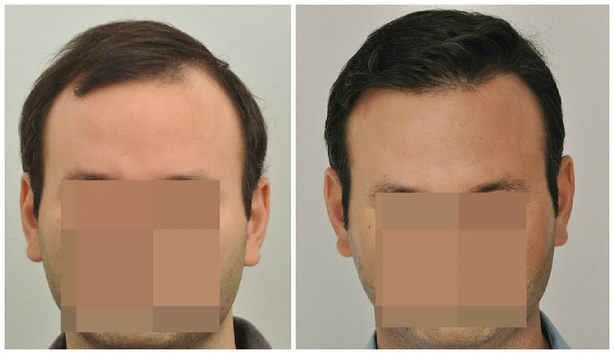 patient-gnn-before-and-after-fill-face1-boxed
