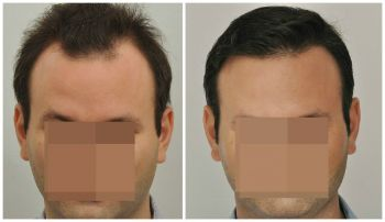 patient-gnn-before-and-after-fill-face2-boxed