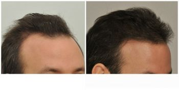 patient-gnn-before-and-after-right-1